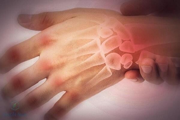 Đau tay trái, nguyên nhân và cách massage giảm đau